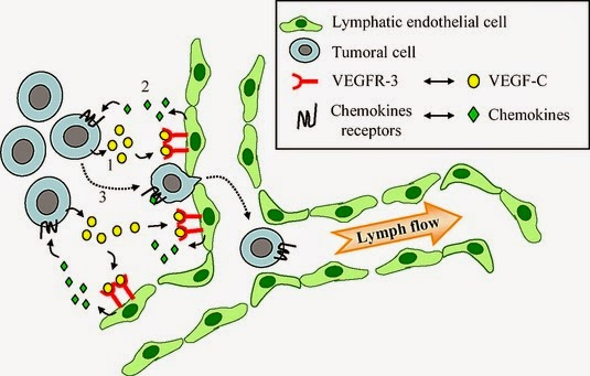Lymphatic metastasis