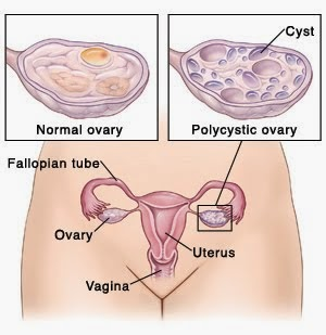 "Polycystic Ovarian syndrome-PCOD-PCOS  This disease is very common disorder now days, very frequently spelled as PCOD.  Although this is not correct, because PCOS is characterized as a syndrome, rather than a disease. It is the most common cause of Anovulation and secondary Amenorrhoea in the adolescents. This syndrome is characterized by Oligomenorrhoea, hirsuitism and obesity; it is associated with insulin resistance and the development of Diabetes. 1% of female population suffers from PCOS, and the patients are mostly 15 to 25 years of age group.   This disease was earlier known as Stein-Leventhal Syndrome. Irving Feiler Stein graduated from Rush Medical College in 1912. He was trained in obstetrics and gynaecology at the Michael Reese Hospital, and from 1916 he remained associated with this hospital for the rest of his life. He also held senior academic appointment in obstetrics and Gynaecology at the Northwestern University Medical School and was a senior member of the staff of the Highland Park Hospital. Stein's main field of investigation was female infertility. Michael Leo Leventhal, with whom he shares eponymic fame, was his colleague.   In polycystic ovary disease, enlarged ovaries with thickened sclerotic capsules and an abnormally high number of follicles are present. The follicles may concurrently exist in varying states of growth, maturation, or atresia.   Although a multiplicity of clinical presentations exists, Stein and Leventhal reported the classic symptomatology in 1935. They described a group of women with amenorrhea, infertility, hirsutism, and enlarged polycystic ovaries. The authors found that, after ovarian biopsy, the women began to menstruate regularly. As was discovered over time, women may have polycystic ovaries, yet their cases may not conform to all of the original criteria. Therefore, Stein-Leventhal syndrome became a subgroup of a more encompassing disease called polycystic ovary disease.   As more information regarding the nature of the condition has come to light, other terms have been applied, including polycystic ovaries syndrome and polyfollicular ovarian disease. In actuality, polycystic ovaries are not the primary cause of amenorrhea or hirsutism in this condition. They are simply one sign of an underlying endocrinologic disorder that ultimately results in anovulation.   PCOS…Pathophysiology  The normal adult ovary measures approximately 3-5 cm in length, 1.5-3 cm in width, and 0.5-1.5 cm in thickness. A thin, fibrous layer called the tunica albuginea encapsulates the ovary. Within the capsule lies the ovarian stroma, a combination of fibroblasts, smooth muscle cells, arteries, veins, lymphatics, nerves, and follicles. The stroma is typically divided into a cortex and medulla. The medulla is a highly vascular region supplied by the ovarian artery and branches of the uterine artery, which enter the ovary via the broad ligament. From here, smaller arteries and arterioles penetrate the cortex. The peripheral zone, or cortex, is predominantly composed of follicles and spindle-shaped fibroblasts and smooth muscle cells.   By the seventh month of gestation, primordial follicles have begun to develop in the fetal ovary. They consist of primary oocytes encapsulated by single layers of follicular cells. At birth, each ovary contains approximately 400,000 primordial follicles. After puberty and during each ovarian cycle, a number of follicles are hormonally stimulated to begin maturing. Usually, only a single follicle completes the process. Follicular cells proliferate and differentiate into the granulosa cell layer. The surrounding ovarian stroma differentiates into thecal cells (internal and external layers). Cell layers play a complex role in the development of the follicle; in hormonal variations during the menstrual cycle; and, ultimately, in ovulation.   In the normal state, the hypothalamus secretes gonadotropin-releasing hormone (GnRH) in a pulsatile manner. The pituitary gland responds to GnRH by releasing Luteinizing hormone (LH) and follicle-stimulating hormone (FSH) in a similar cycle. In the follicular phase of the menstrual cycle, LH acts primarily on the theca cells of the ovary to increase the production of androgenic precursors. Concurrently, FSH acts on the granulosa cells to promote conversion of the androgens into estrogens, particularly estradiol, which assists in follicular development. During the follicular phase, increasing levels of estradiol lead to an LH surge. In a complex interaction, the LH surge, the elevated levels of estradiol, and an increase in the circulating progesterone level trigger the mid cycle surge of FSH.   In polycystic ovaries syndrome, the cycle is disturbed. Any of several possible precipitating factors may contribute to the imbalance. Evaluation of blood serum levels typically reveals elevated LH levels and normal or low FSH levels. Patients also have increased levels of free oestrogen, primarily estrone and estradiol. Estrogens exert a complex feedback effect on the pituitary gland that results in the suppression of FSH secretion and the increased release of LH. Thus, the production and release of androgen precursors by ovarian theca cells is increased. The peripheral conversion of androgens to estrogens, primarily estrone, strengthens the feedback effect on the pituitary gland.  The same androgens also inhibit the production of sex hormone-binding globulin in the liver, indirectly increasing levels of free oestrogen in the bloodstream as well. Locally, elevated androgen levels in the ovary exert a direct inhibitory effect on follicular maturation. In conjunction with the diminished but steady presence of FSH, the follicles continue to develop without ever maturing. Thus, numerous follicles are present in the polycystic ovary and show varying phases of development and atresia.   PCOS and Insulin Resistance  PCOS is a hormonal imbalance linked to the way the body processes insulin after it has been produced by the pancreas to regulate blood sugar. The underlying cause of PCOS, Insulin Resistance, has many factors that contribute to its presence in the body. In essence, our environment and lifestyles have evolved too rapidly for our bodies to keep pace. We are still genetically ""wired"" to thrive on the entrenched habits of our ancestors, who consumed different, nutrient-rich foods, a diet low in carbohydrates and who sustained greater levels of movement and exercise. Some people may also have a genetic predisposition to Insulin Resistance, while others develop the condition through high stress and unhealthy lifestyles.   Over time, the above factors have damaged the complex ability of the body's cells to properly utilize insulin to convert glucose to energy.   This process creates Insulin Resistance, which causes PCOS in two distinct ways. '   First,  Insulin Resistance vastly reduces the number of insulin receptor sites or doorways on the walls of your cells. The average healthy person has some 20,000 receptor sites per cell, while the average overweight individual with PCOS can have as few as 5,000. If you have too few receptor sites, glucose bounces off the cell wall, instead of passing through the insulin door to be burned as energy. With the cell door almost closed to it, glucose remains in the blood stream, causing elevated levels of blood sugar, which are sent to the liver. Once there, the sugar is converted into fat and stored via the blood stream throughout the body. This process can lead to weight gain and obesity, key factors in creating PCOS, which is also referred to as Polycystic Ovarian Disease or PCOD.    The second  way that Insulin Resistance causes PCOS is by raising insulin levels in the blood stream. Unhealthy lifestyles and genetic conditions cause the pancreas to overproduce insulin. The cell is, in turn, overwhelmed by this excess insulin and protects itself by reducing the number of its insulin receptor sites. This process leaves too few sites for insulin to carry out its normal function, which is to attach itself to the cell wall and act as a key in a lock allowing glucose to pass through the cell wall and be converted into energy. The vastly-reduced number of receptor sites in Insulin Resistant people causes an excess of insulin ""rejected"" by the cell to free-float in the blood stream, creating unbalanced hormone levels in PCOS sufferers. Excess insulin stimulates the ovaries to produce large amounts of the male hormone testosterone, which may prevent the ovaries from releasing an egg each month, thus causing infertility. High levels of insulin also increase the conversion of androgens (male hormones) to estrogens (female hormones), upsetting a delicate balance between the two and having a direct effect on weight gain and the formation of cystic follicles or ovarian cysts.PCOS….    Clinical features   Period irregularities and infertility    Most patients in whom polycystic ovaries syndrome is ultimately diagnosed initially present with amenorrhoea, irregular menses or infertility.    Although most patients present in their 20s or 30s, polycystic ovarian disease can affect females of any age, from menarche to menopause. Findings in almost 75% of patients meet the imaging studies like USG,CT,MRI criteria for polycystic ovary syndrome. Primary amenorrhoea is a well known but uncommon presentation.    Although infertility is the most common presentation, polycystic ovaries syndrome may be associated with obesity and insulin resistance, among other symptoms. A number of patients are identified only when they present with unrelated complaints. These patients may believe that the symptoms associated with the syndrome are not of sufficient clinical significance to warrant medical attention.    A second population of patients presents with systemic signs of androgen excess, namely, hirsuitism, acne, or male-pattern baldness. In approximately one half of the patients, sonograms show polycystic ovaries.   Additionally, a significant number of patients with unrelated complaints are incidentally found to have polycystic ovaries. Further detailed clinical evaluation reveals that approximately one half of the patients in this group have typical signs and symptoms of the syndrome (i.e., hirsutism, acne, infertility) and that one-quarter have related symptoms such as obesity, irregular menses, or insulin resistance. The remaining one-quarter of the patients may not have any clinically evident abnormality   Homeo Treatment for PCOD, PCOS, Symptomatic Homeopathy works well for PCOD, PCOS, It helps to prevent further recurrence also. So its good to consult a experienced Homeopathy physician without any hesitation.    Whom to contact for PCOD, PCOS, Treatment  Dr.Senthil Kumar Treats many cases of PCOD, PCOS, In his medical professional experience with successful results. Many patients get relief after taking treatment from Dr.Senthil Kumar.  Dr.Senthil Kumar visits Chennai at Vivekanantha Homeopathy Clinic, Velachery, Chennai 42. To get appointment please call 9786901830, +91 94430 54168 or mail to consult.ur.dr@gmail.com,    For more details & Consultation Feel free to contact us. Vivekanantha Clinic Consultation Champers at Chennai:- 9786901830  Panruti:- 9443054168  Pondicherry:- 9865212055 (Camp) Mail : consult.ur.dr@gmail.com, homoeokumar@gmail.com   For appointment please Call us or Mail Us  For appointment: SMS your Name -Age – Mobile Number - Problem in Single word - date and day - Place of appointment (Eg: Rajini – 30 - 99xxxxxxx0 – PCOD, PCOS, Irregular Menses, Obesity – 21st Oct, Sunday - Chennai ), You will receive Appointment details through SMS"