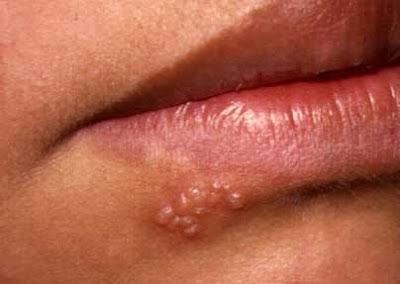 herpes na usni lecenje