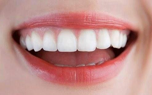 Bagaimana Cara Memutihkan Gigi dengan Jeruk Nipis