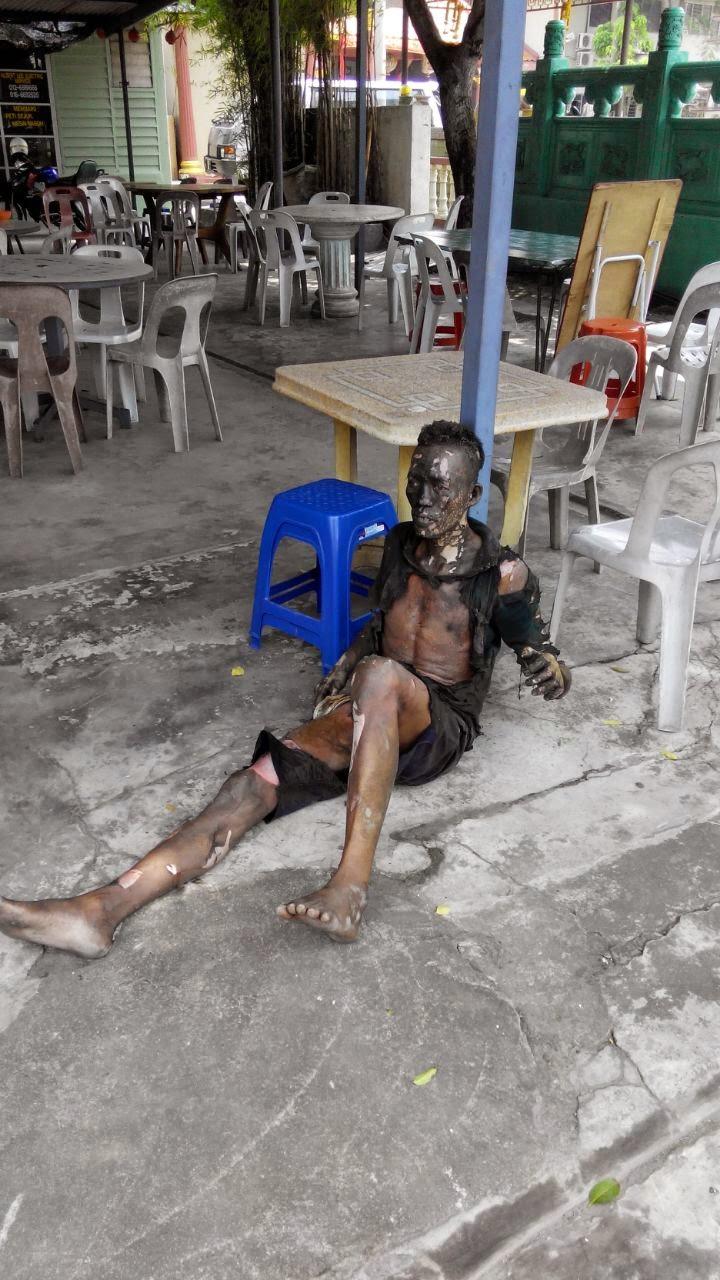 Gambar Lelaki Melecur Teruk Curi Kabel TNB