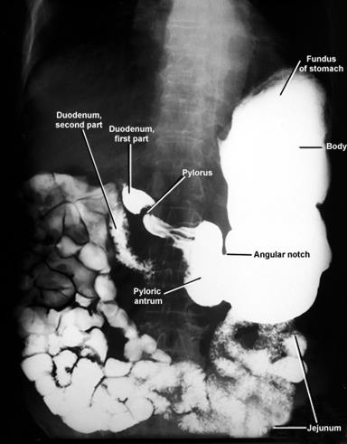 My radiology world barium meal x ray examination x ray of the stomach with both positive barium sulphate and negative co2 radiocontrast ccuart Choice Image