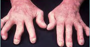Watch 7 Joint Pain Triggers That Can Make RA Worse video