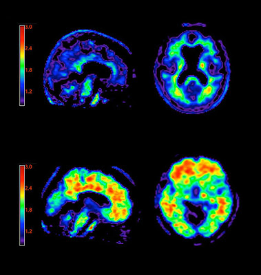 Análisis de placas: En un escáner PET, un medio de contraste muestra la acumulación de placas amiloides en un paciente de alzhéimer (panel inferior) en comparación con un paciente cognitivamente normal (panel superior). El extremo rojo de la escala de colores muestra la unión máxima del medio de contraste y el extremo negro/azul muestra la unión mínima.  Fuente: Avid Radiopharmaceuticals
