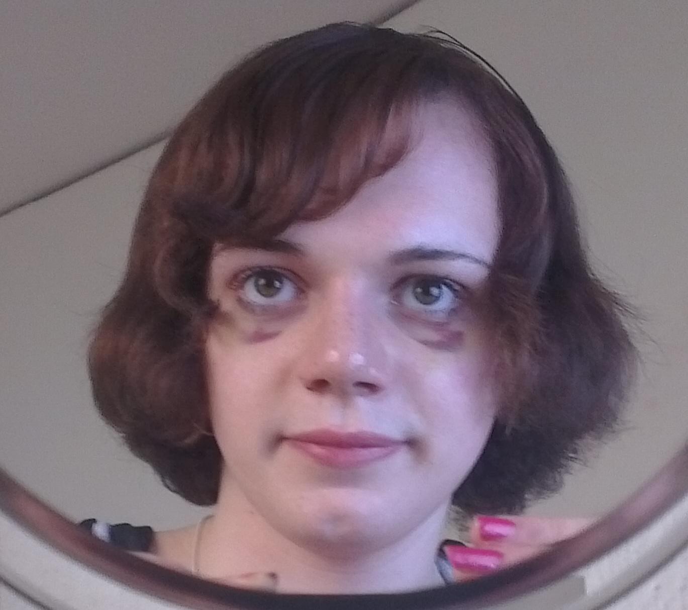 Haarausfall: Wie der Kopf gar nicht erst kahl wird - WELT
