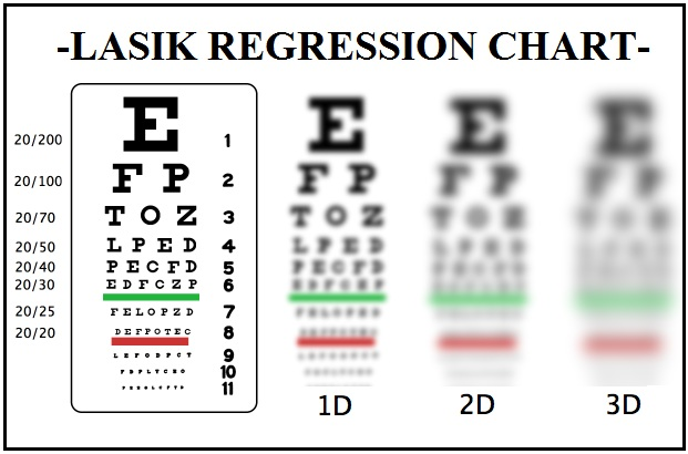 LASIK PUBLIC HEALTH ADVISORIES ISSUED: : CLINICAL STUDIES SHOW ...