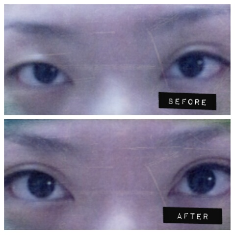 how to tell fake double eyelids