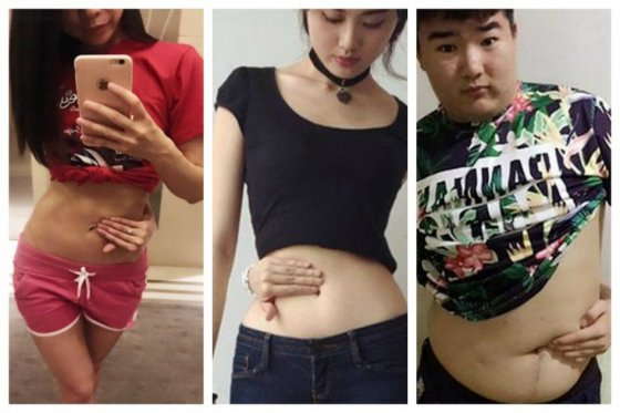 China Viral Weight Loss Trend, Medical experts raise concerns about 'Belly Button Challenge', 'Belly button challenge' goes viral on Chinese social media