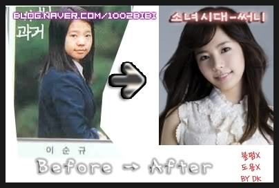 sone s blog snsd plastic surgery