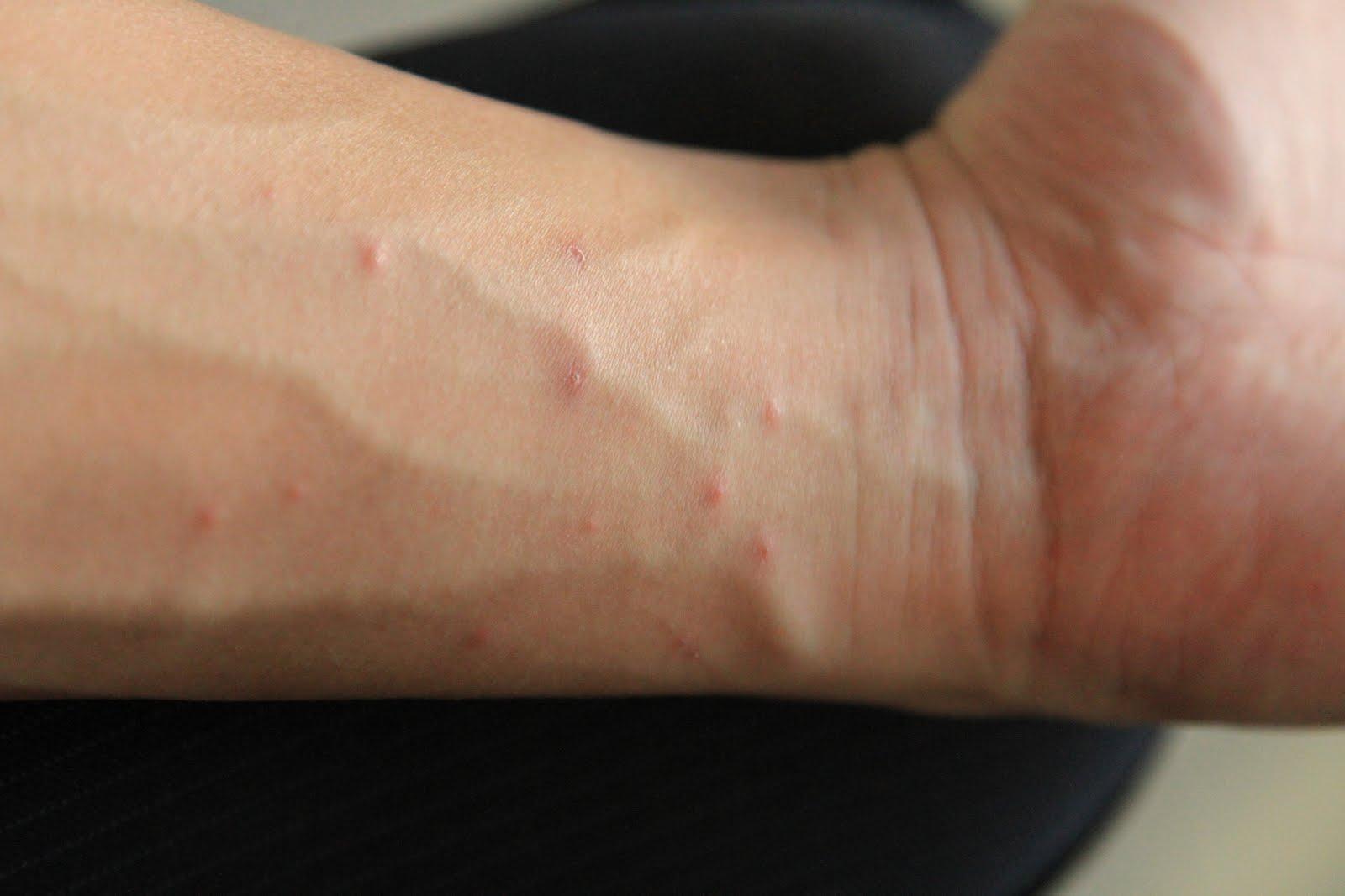 scabies on hands | Best Scabies Treatment: Dr. Scabies ...