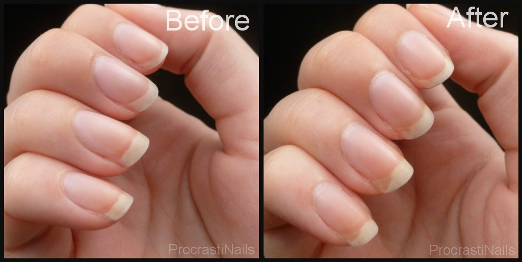 Before And After A Week Of Using Duri Rejuvacote