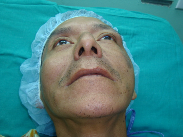 Dr. Alex Polit Luna- Cirujano Oral y Maxilo Facial.: Fractura de ...
