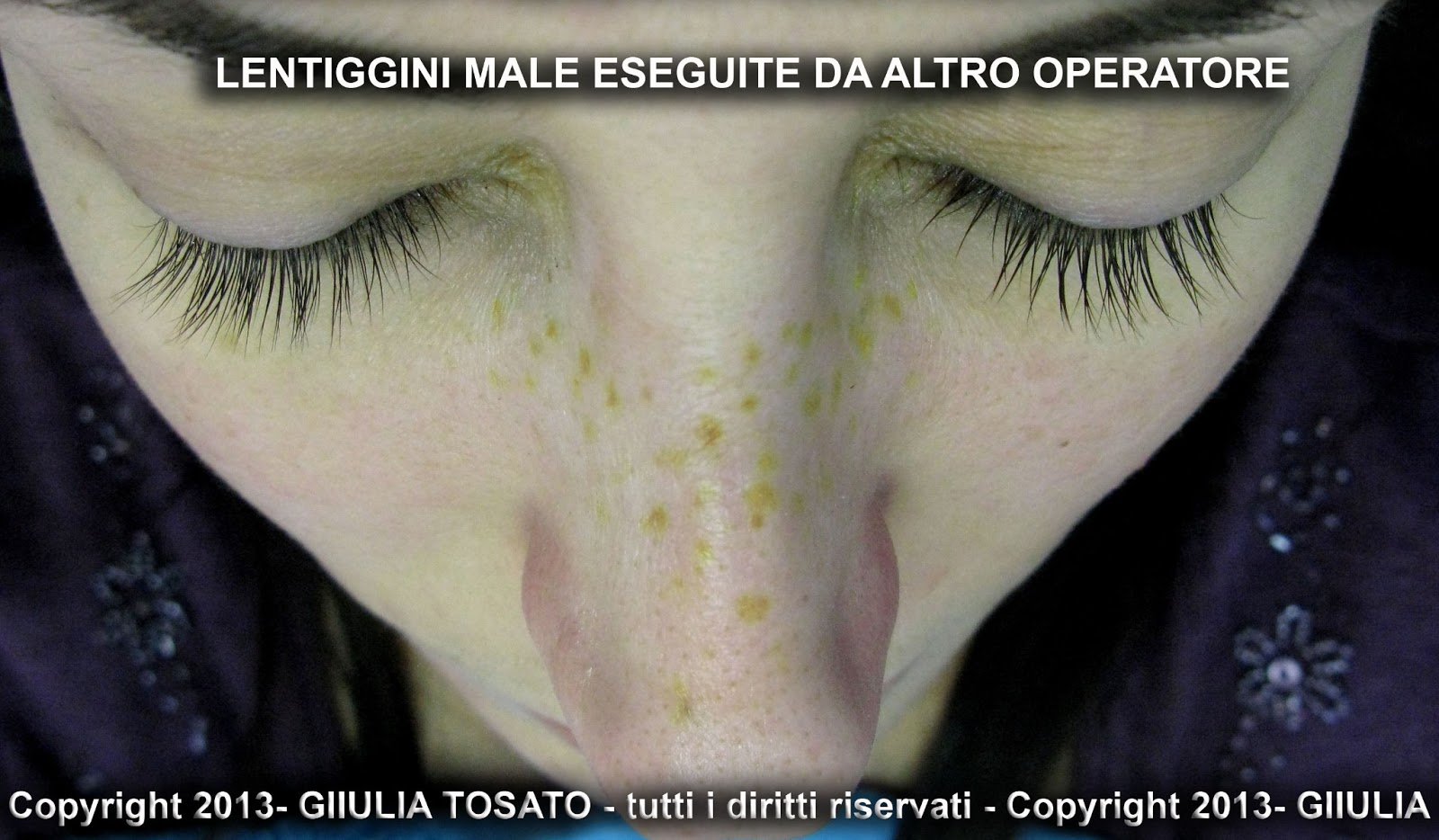 Restaurare la pigmentazione di pelle dopo unustione