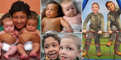 Kok Bisa ya, Anak Kembar Beda Warna Kulit