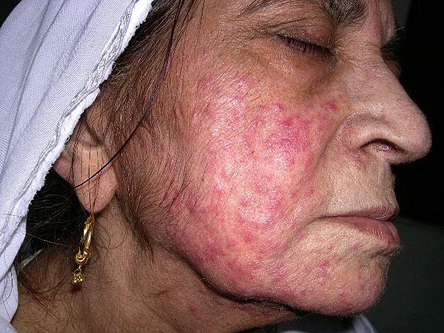El origen atopicheskogo de la dermatitis