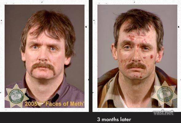 wajah ke 12 Wajah Para Pemakai Narkoba Sebelum Dan Sesudah Kecanduan