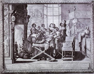 An Insight into Midwifery in the 17th Century