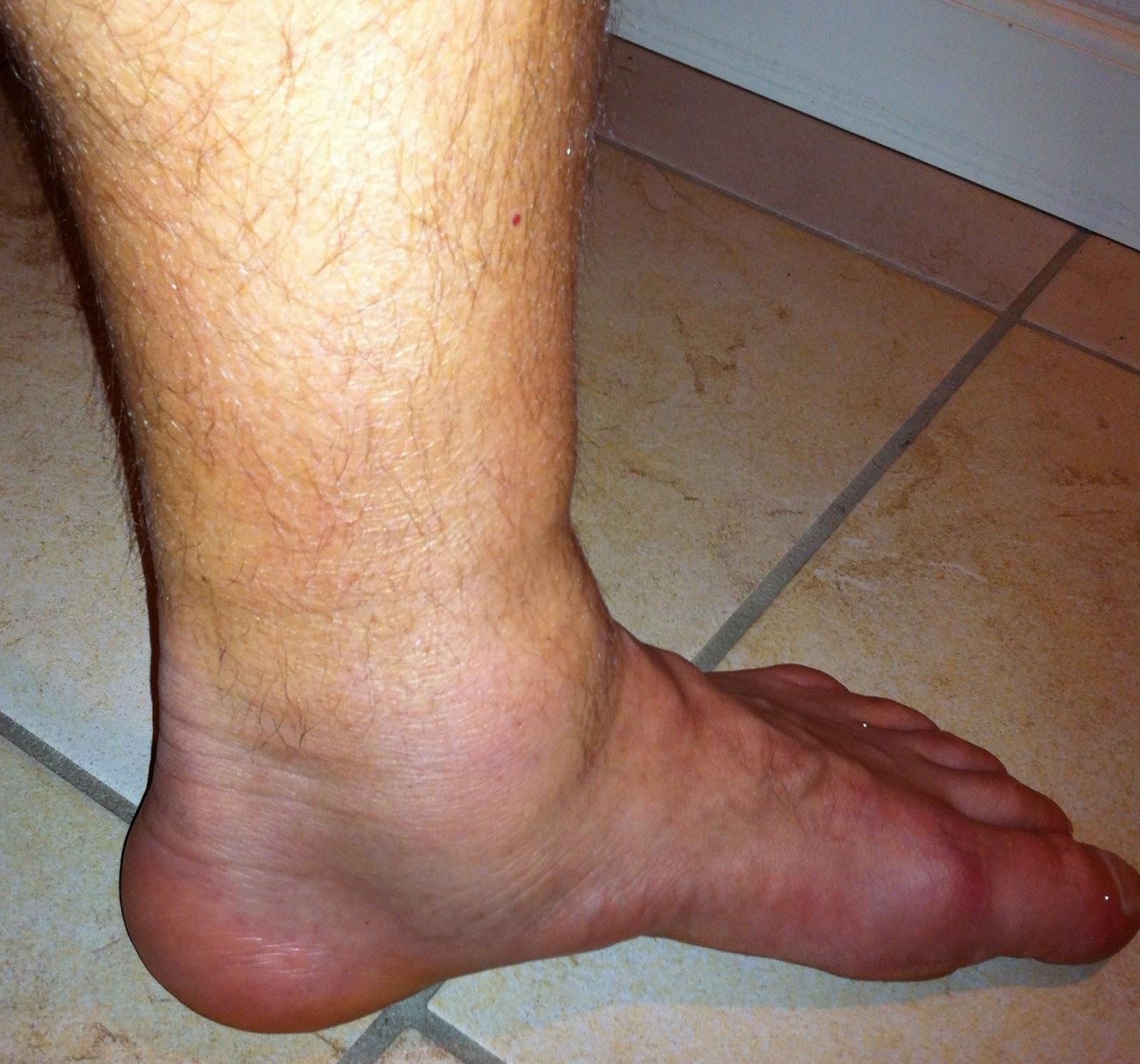 hævet fod smerter