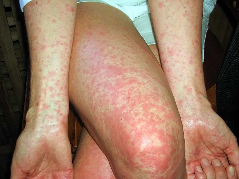Fever and Skin rash: Common Related Medical Conditions