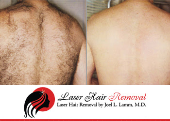 laser hair removal of li trounce back hair the sure