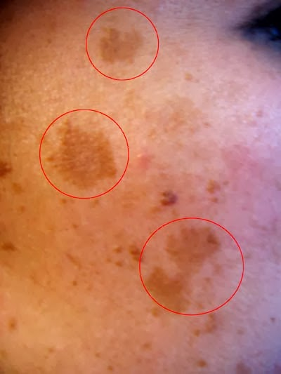 melasma hyperpigmentation on the face