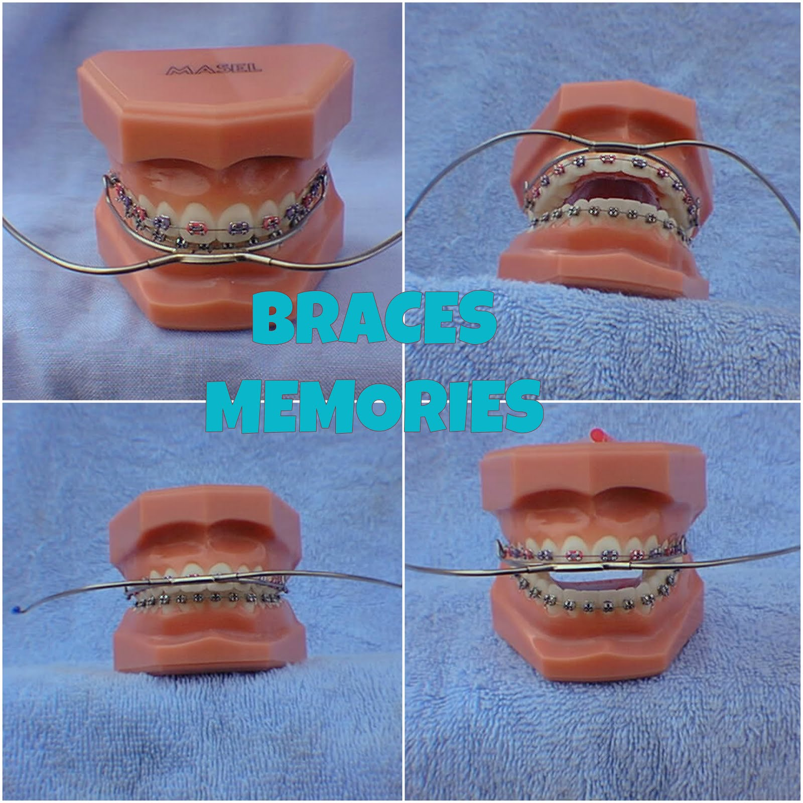 Braces Memories: Mouthwear Stories: Finishing The Treatment