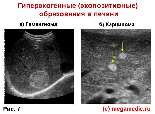 Гиперэхогенные образования в печени. Гемангиома, карцинома