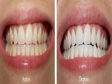 Dicas Da Tham Dicas Para Clarear Os Dentes