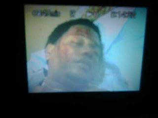 PN apresa hombre mató uno e hirió a otras cuatro personas en riña