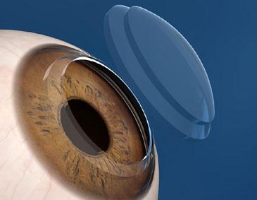 transplante de cornea a laser