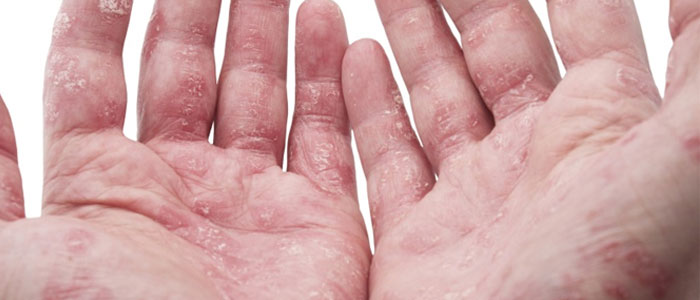 Psoriasis is another common cause of skin flakes and is a chronic disease of the immune system 3