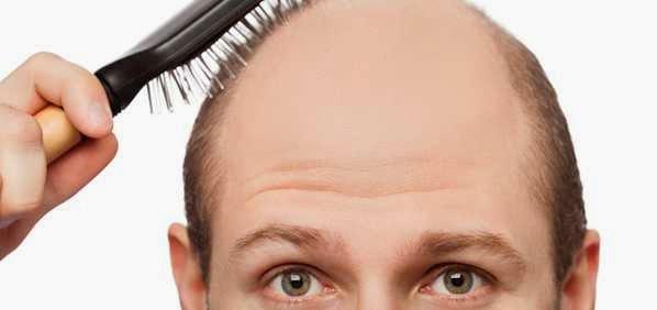 Cara Mengatasi Kebotakan Rambut