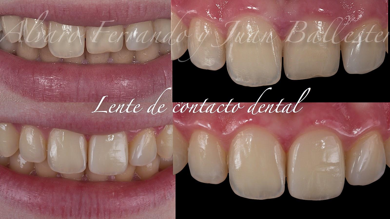 Clínicas Ferrando Face Design - Odontología Restauradora Estética ...