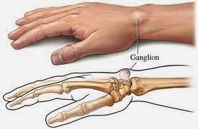 Bahaya Penyakit Kista Ganglion