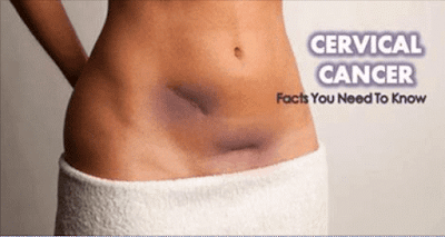 Demystifying Cervical Cancer