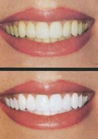 gigi, putih, bersih