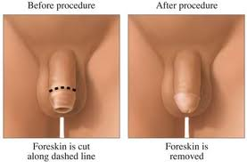 Benefits of circumcision