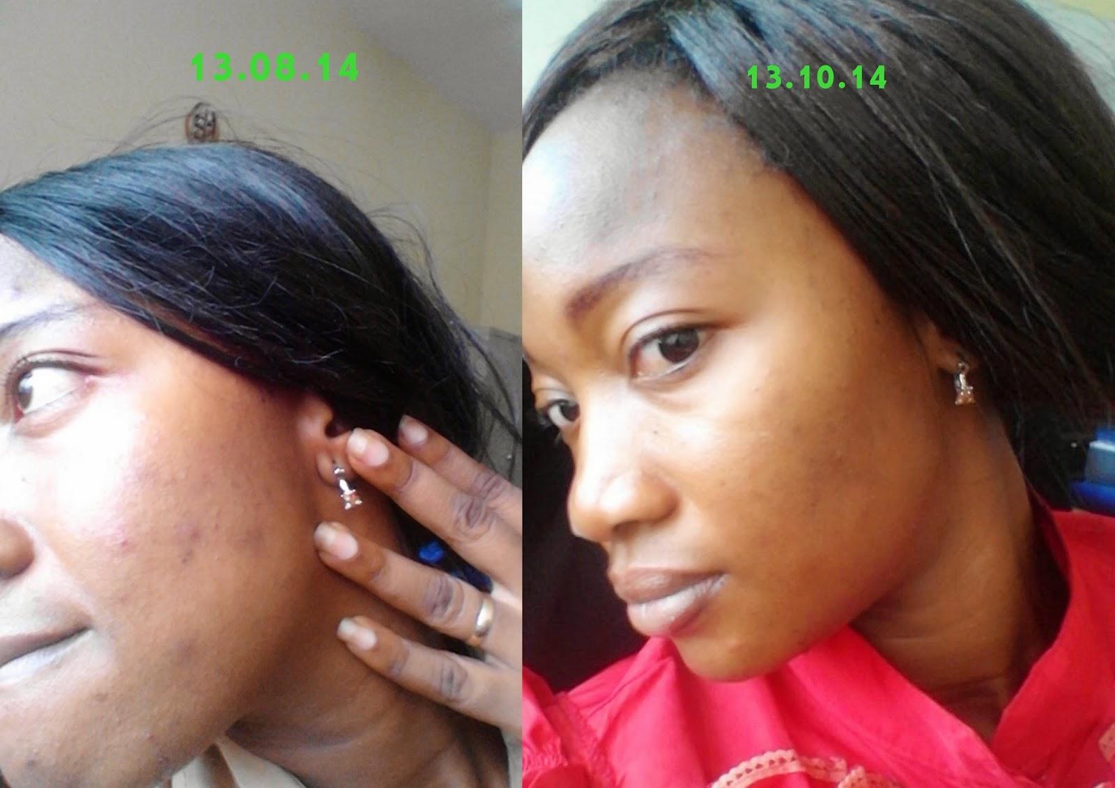 lime and honey facial scrub