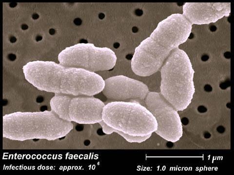 enterococcus faecalis - photo #31