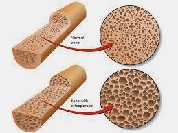 Pengobatan Terbaik Untuk Osteoporosis
