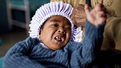 Jerly Lyngdoh, Balita Tertua di Dunia