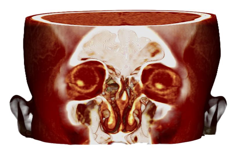 写真:目の偏り 脳内出血
