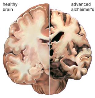 Obat herbal alzheimer