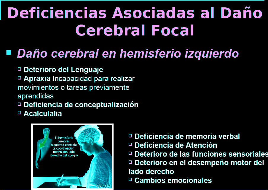 Los Accidentes Cerebrovasculares: Ictus y Derrame Cerebral (y II ...