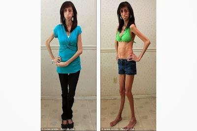 Lizzie Velasquez, Wanita Terkurus di Dunia yang Tubuhnya Tinggal Tulang