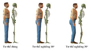 cách chữa bệnh đau lưng