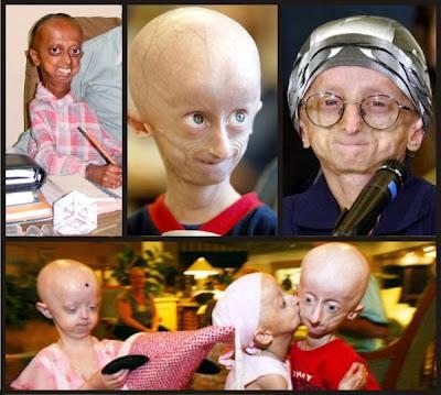 enfermedades extrañas, raras, niños ancianos, envejecimiento prematuro, viejos, progeria