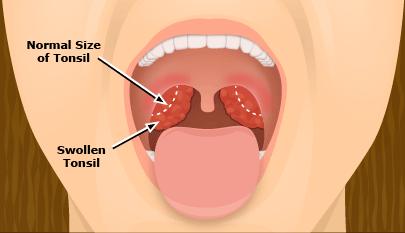 Enflure de la gorge de l'uvula
