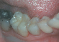 amalgam filling or white filling dentist milton keynes