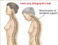Mengenal Tentang Osteoporosis Dan Pengobatannya